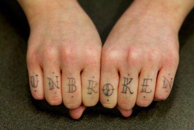 Tatuaż Usuwanie